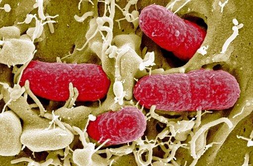 EHEC-Keime sind eine gefährliche Form des Darmbakteriums Escherichia coli. Schon sehr geringe Mengen können beim Menschen zu einer Infektion führen.Das Robert-Koch-Institut empfiehlt zur gründlichen Händehygiene, Speisen vor dem Essen gut  zu garen, und zwar mindestens zehn Minuten lang bei 70 Grad. Obst und Gemüse sollten gründlichgewaschen werden. Foto: dpa